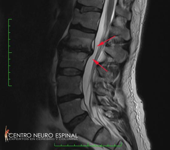 Michael Simons Spine 2